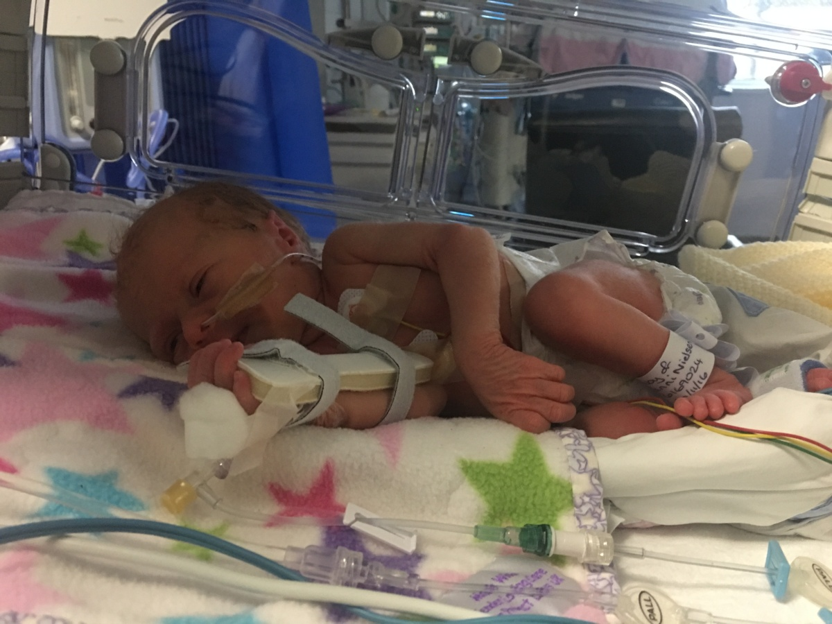 Flo-preemie-baby